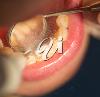 Doctor performs an operation on teeth in dentistry