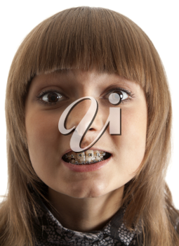 Royalty Free Photo of a Young Girl Showing Her Braces