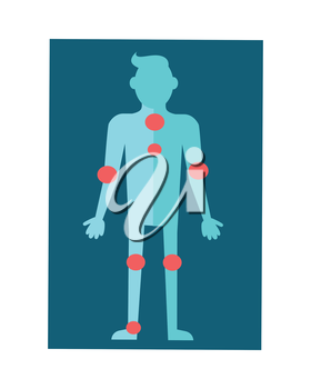 Anatomical scheme of human body. Vector in flat design. Center of inflammation. Man silhouette with red circles meaning diseased organs. Illustration for medical concepts. Isolated on white background