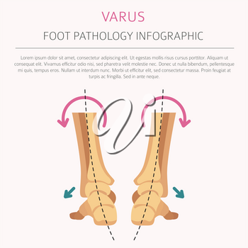 Foot deformation as medical desease infographic. Valgus and varus defect. Vector illustration