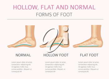 Foot deformation types,  medical desease infographic. Hollow, flat and normal foot. Vector illustration