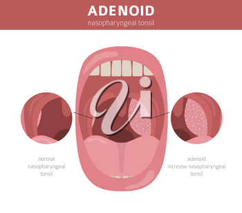Nasal and throat, nasopharynx diseases. Adenoids diagnosis and treatment medical infographic design. Vector illustration