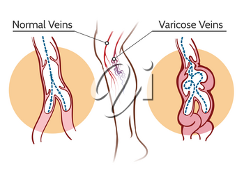 Varicose veins. Healthy leg vascular system and vessels thrombosis vector illustration