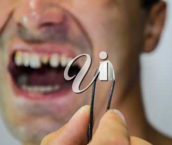 Dental prosthesis of metal ceramics in tweezers. A patient without a tooth is trying on a denture. Tooth implantation, dental treatment.